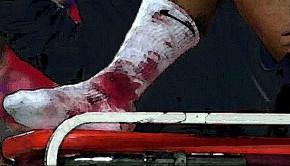 606_neymar-tobillo-sangre